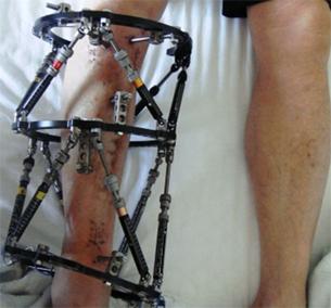 重傷外傷治療や変形治癒などに対するイリザロフ創外固定手術